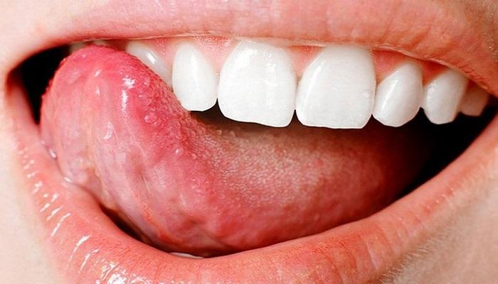 Язвочка на кончике языка!  Полезная информация для всех
