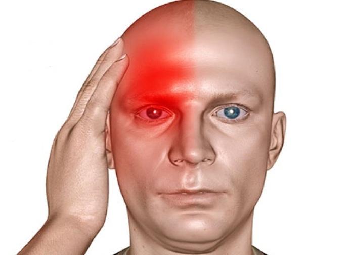 Локализация мигрени