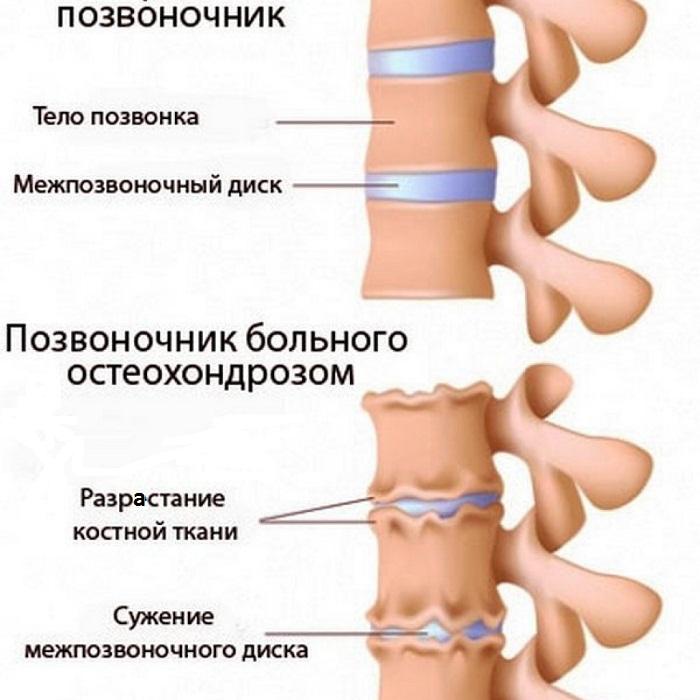 Сильная боль в голове и шеи