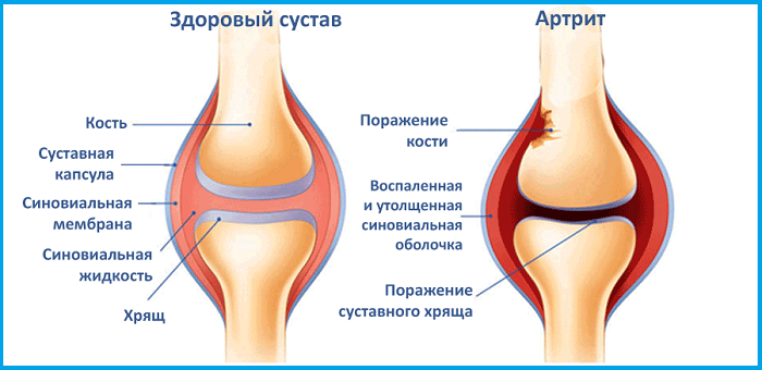Артрит колена