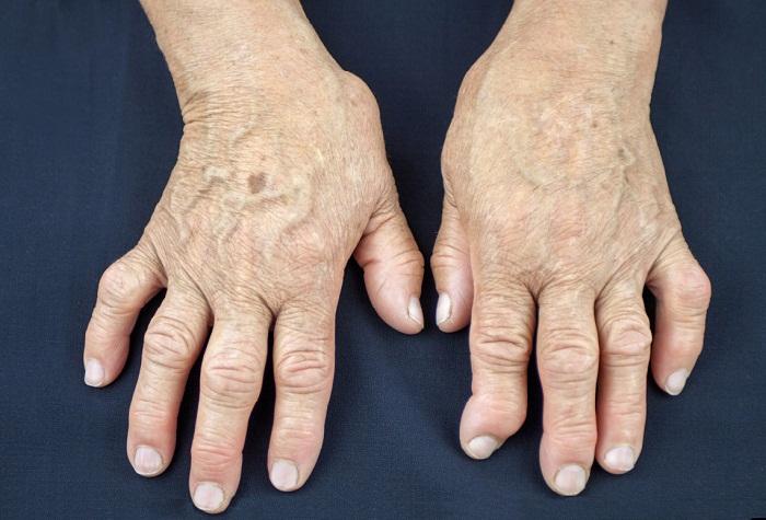 Болезни суставов рук лечение боли