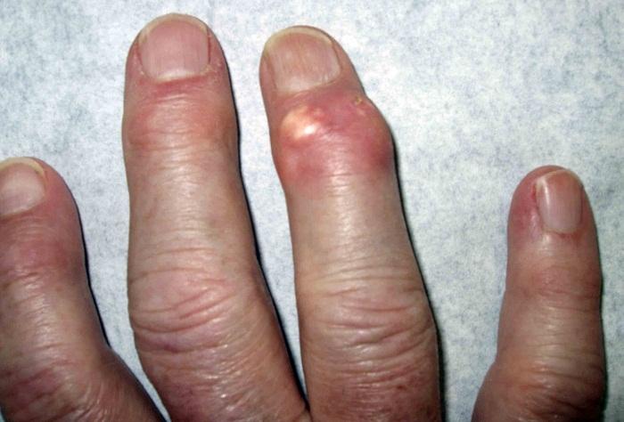 Воспаление лимфаузлов и боли в горле