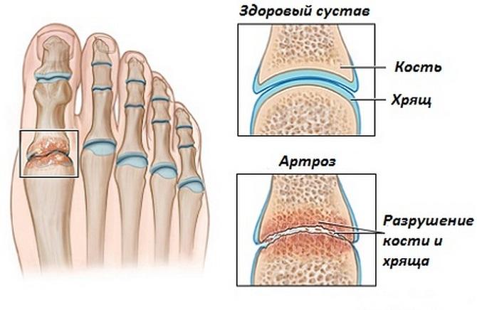 артроз суставов ступни