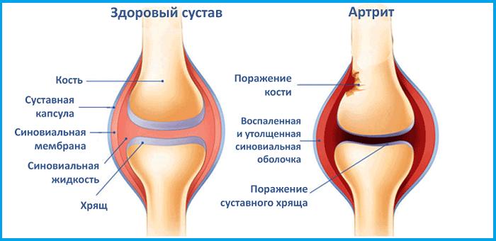 Почему болит колено сбоку с внешней стороны растяжение связок левого лучезапястного сустава
