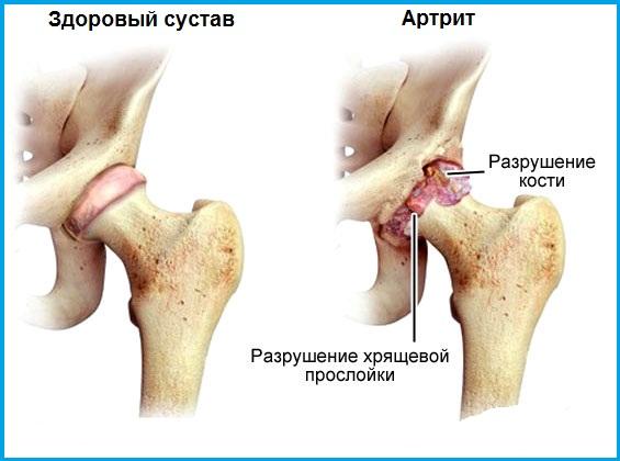 Грибковый артрит