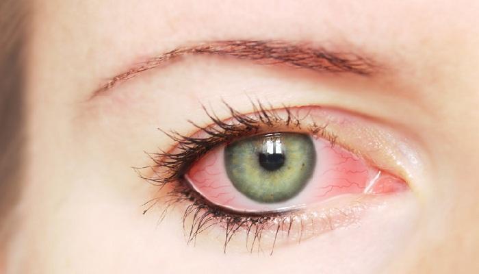 Покраснение и боль в глазу