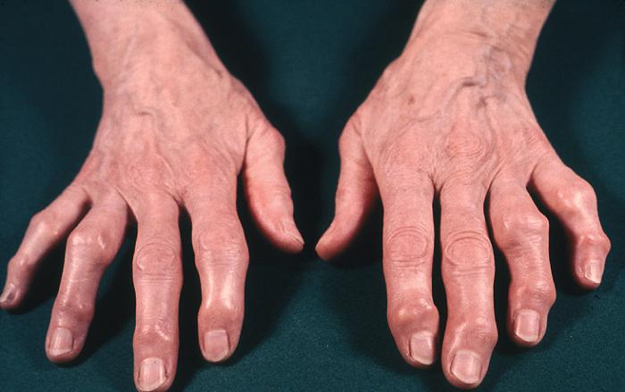 кисть больного ревматоидным артритом