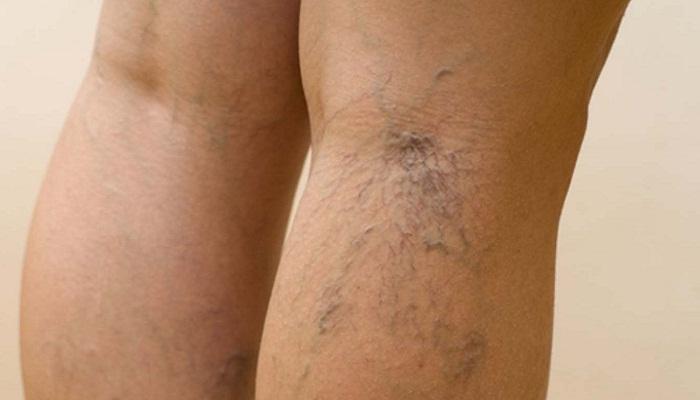 Почему болят вены под коленом сзади и что делать