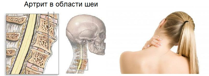 Причины и лечение головной боли и хруста в шейной области