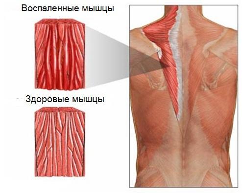 Особенности строения шейного отдела