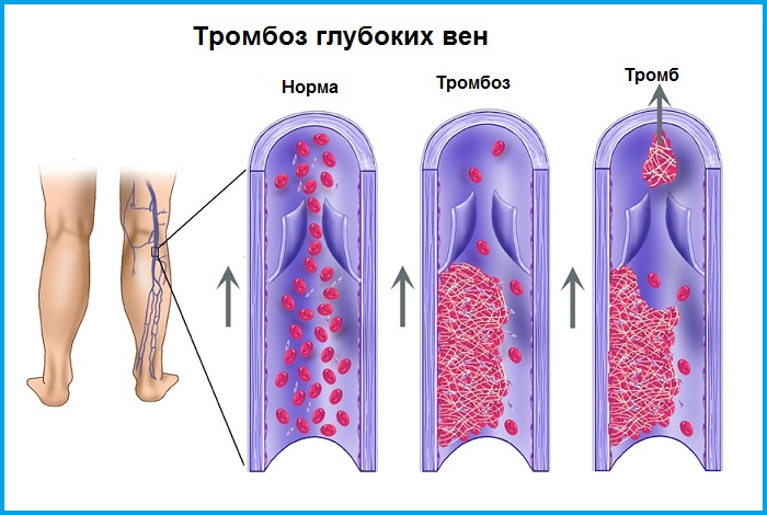 тромбообразование